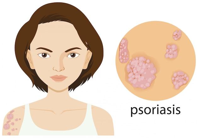 Mujer con psoriasis en cartel
