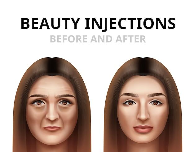 Mujer que tiene inyección de belleza facial