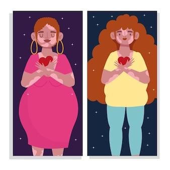 Mujeres de personaje de dibujos animados con vitiligo amor propio ilustración