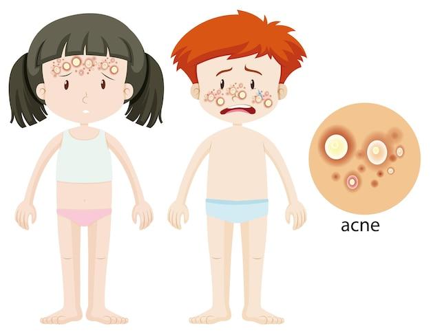Niño y niña con problema de acné