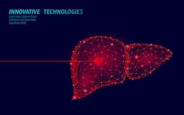 Operación de cirugía láser de hígado humano bajo poli. medicina enfermedad tratamiento farmacológico zona dolorosa. los triángulos rojos poligonales 3d render forma. ilustración de plantilla de cáncer de hepatitis de farmacia