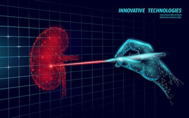 Operación de cirugía láser de riñones humanos low poly