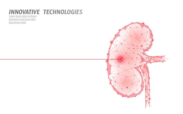 Operación de cirugía láser de riñones humanos bajo poli. medicina enfermedad tratamiento farmacológico zona dolorosa. los triángulos rojos poligonales 3d render forma. ilustración de plantilla de recuperación de cáncer de piedras de farmacia