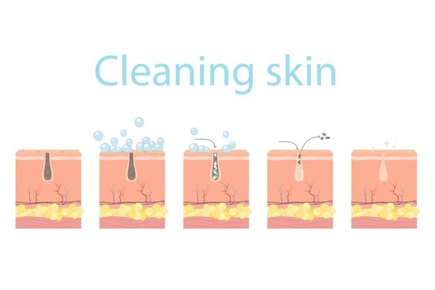 Pasos de limpieza de poros, cuidado de la piel facial.