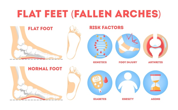 Patologías del pie, cartel informativo. anatomía del pie plano. deformado