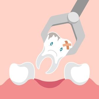 Pinza de extracción dental y diente.