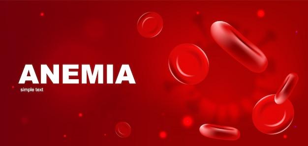 Plantilla de banner realista de anemia