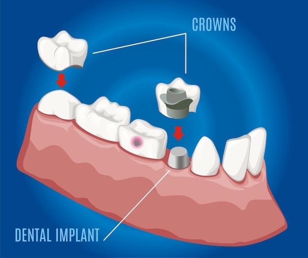 Plantilla de estomatología protésica profesional isométrica con implantes dentales y coronas sobre fondo azul aislado
