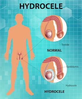 Póster médico que muestra diferencias entre testículo masculino normal e hidrocele