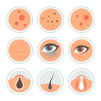 Problemas de la piel. círculos oscuros mujer infección mancha lavarse la piel cara aceitosa edades limpiar los poros icono médico. problema dermatología, tratamiento y cuidado de la piel ilustración de arrugas