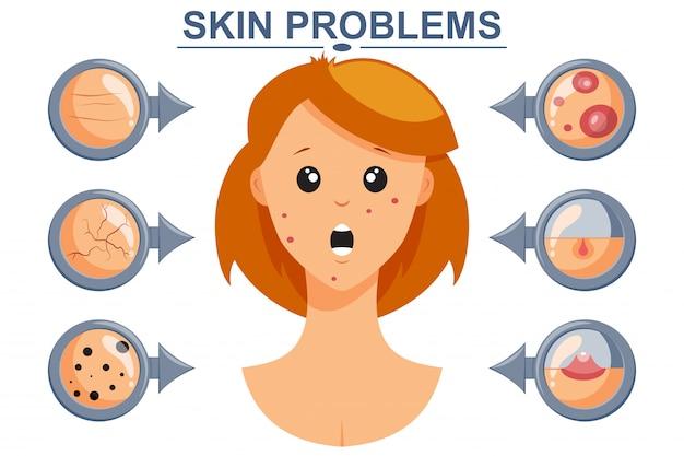 Problemas de la piel vector infografía