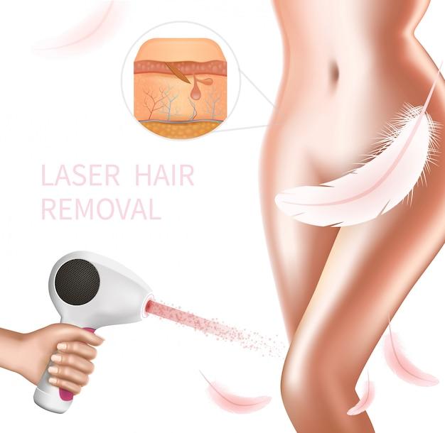 Procedimiento de depilación láser en el área del bikini femenino