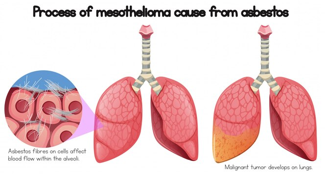 Proceso de mesotelioma causa del amianto