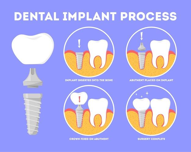 Proceso de implante dental. tratamiento médico y odontológico.