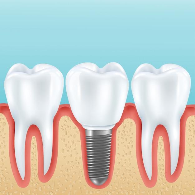 Prótesis dentales con dientes sanos.