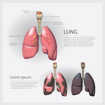 Pulmón con detalle y cáncer de pulmón ilustración vectorial