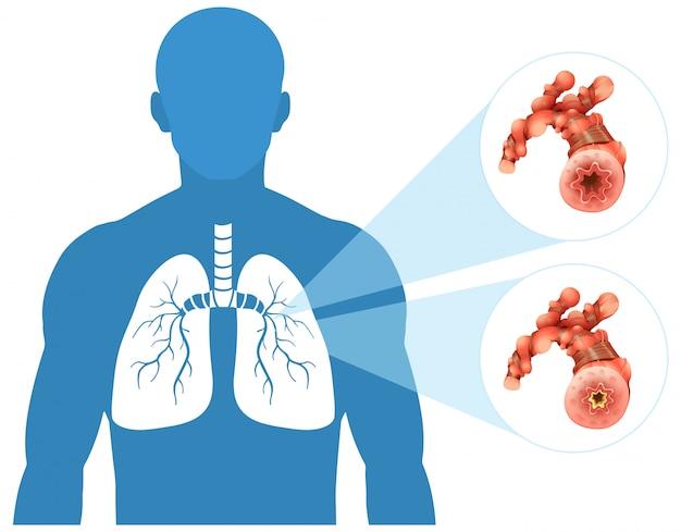 Pulmón humano en el fondo blanco