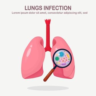 Pulmones con infección respiratoria y lupa. bacterias, microbios, virus, gérmenes en órganos