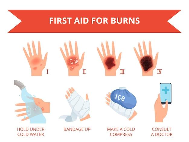 Quema la piel. primer tratamiento mano humana incendio o destrucción química lesión graviera piel seguridad para personas infografía.