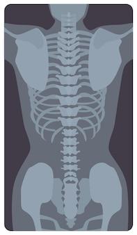 Radiografía anterior de la caja torácica y la pelvis humanas. imagen de rayos x o imagen radiográfica de huesos y articulaciones, vista frontal. diagnóstico médico. ilustración de vector monocromo en estilo de dibujos animados plana