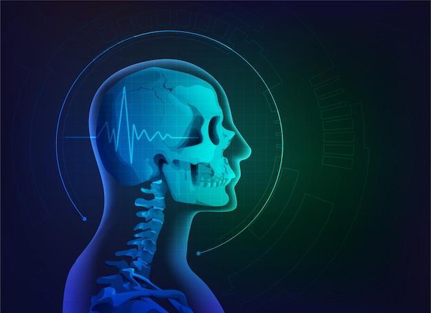 Radiografía de cráneo
