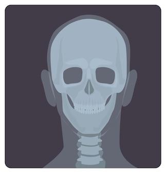 Radiografía frontal de cráneo. imagen de radiación x o imagen de rayos x de la cabeza, vista frontal. radiografía médica moderna y sistema esquelético humano. ilustración de vector monocromo en estilo de dibujos animados plana.