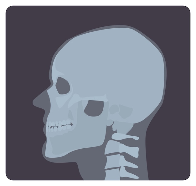 Radiografía lateral de cráneo. imagen de rayos x o imagen radiográfica de la cabeza, vista lateral. radiografía médica moderna y sistema esquelético humano. ilustración de vector monocromo en estilo de dibujos animados plana.
