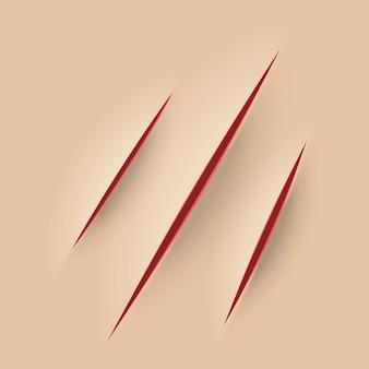 Rasguño en la piel roja sangre corte de navaja ilustración vectorial