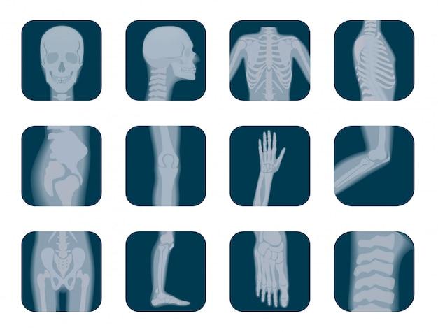 Realista conjunto de iconos de esqueleto de rayos x