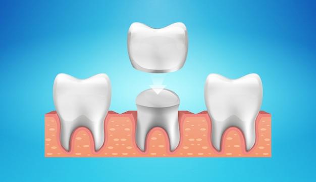 Restauración de corona dental en estilo realista.