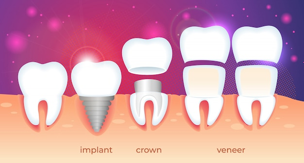 Restauración de ortodoncia