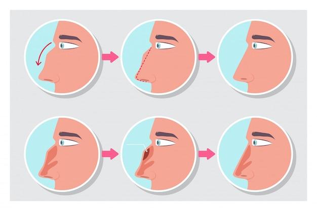 Rinoplastia antes y después de la infografía del procedimiento.