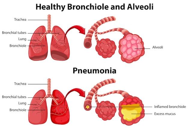 Saluda e insalubre de los pulmones humanos.