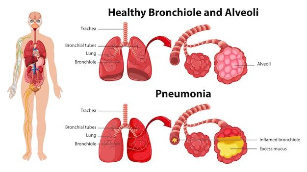Saludables y no saludables de los pulmones humanos.