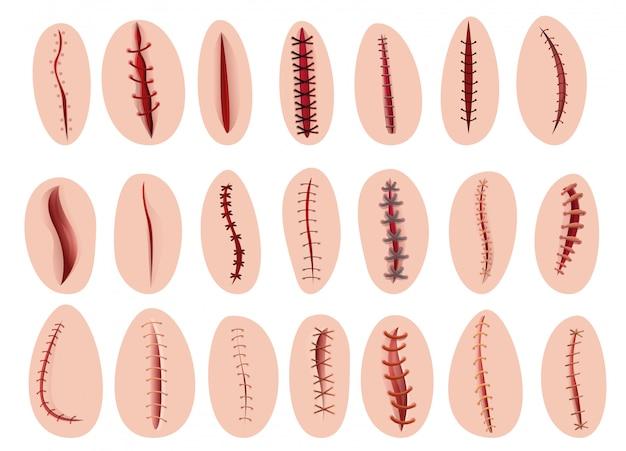 Set de sutura, estilo cartoon.