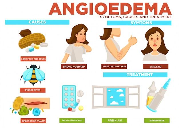 Síntoma de angioedema, causas y tratamiento de la enfermedad.