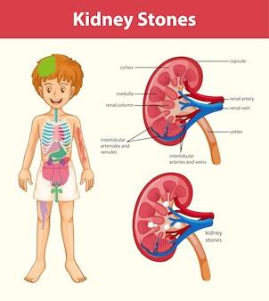 Síntomas de cálculos renales estilo de dibujos animados infografía