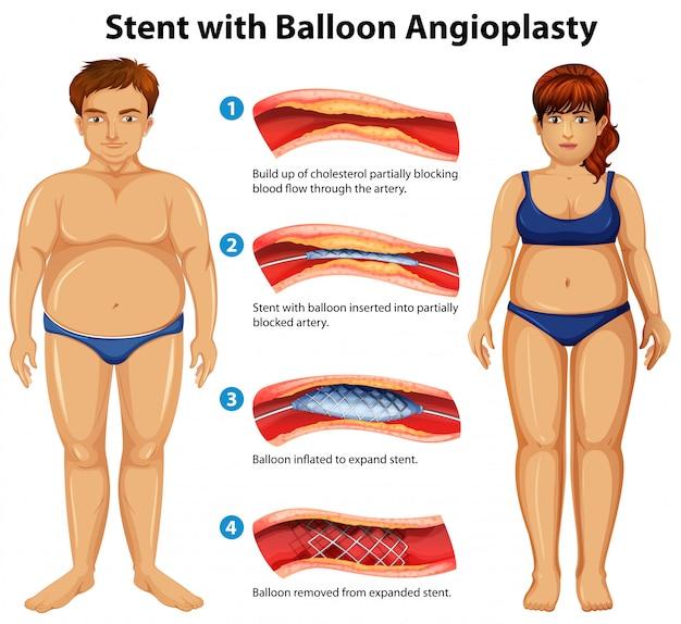 Stent con angioplastia con balón
