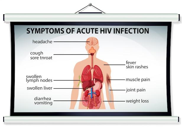 Tabla que muestra los síntomas de la infección aguda por vih