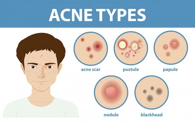 Tipos de acné en la piel o espinillas.