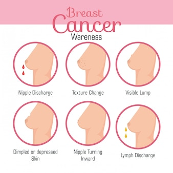 Tipos de apariencias del seno