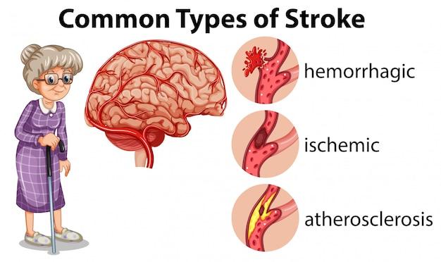 Tipos comunes de apoplejía