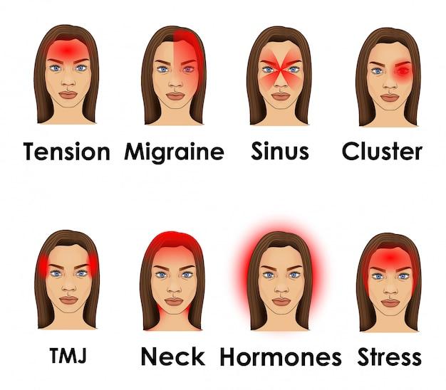 Tipos de dolor de cabeza ilustrados en una cara de mujer