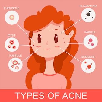 Tipos de infografías del acné. linda chica joven con granos. ilustración de concepto médico plano de dibujos animados de vector.