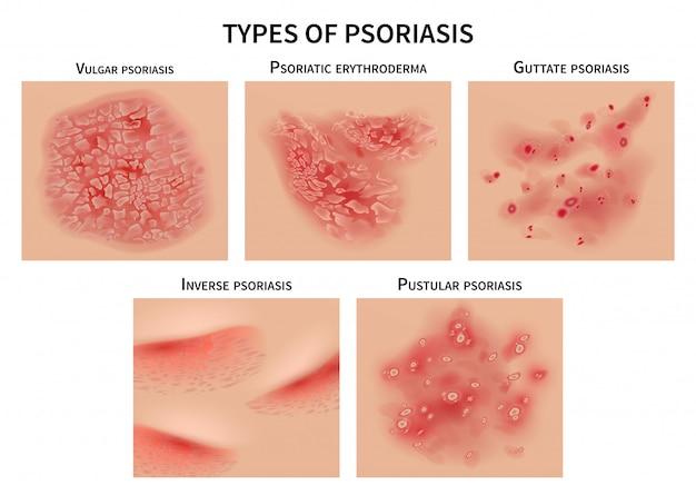 Tipos de psoriasis. piel urticaria, enfermedades de la derma closeup ilustración médica