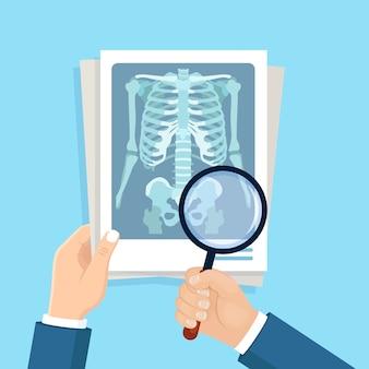 Toma de rayos x del cuerpo humano y lupa en la mano de un médico. roentgen del hueso del pecho