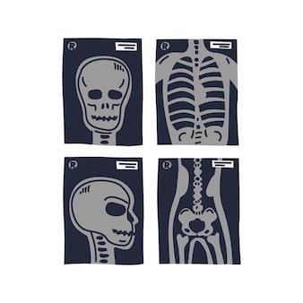 Tomas de rayos x estilizados de la cabeza del pecho humano en la vista frontal y lateral y coxal