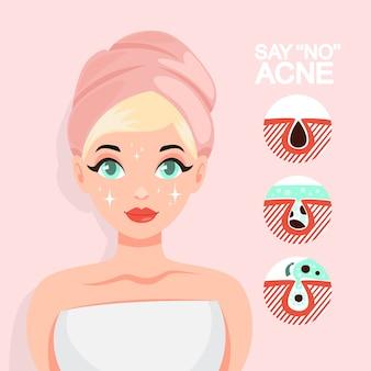 Tratamiento del acné con mascarilla. idea de belleza