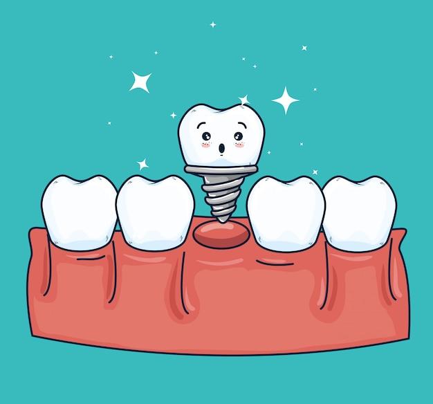 Tratamiento de prótesis dental con tratamiento medicinal.