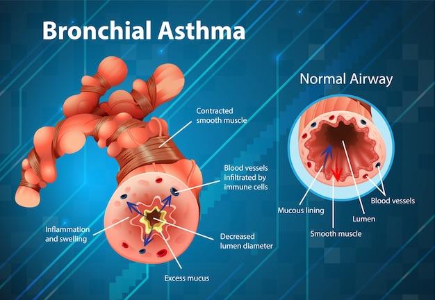 Tubo bronquial inflamado por asma